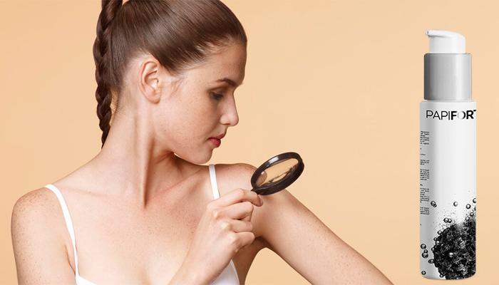 NEGII SI PAPILOAMELE VOR FI DE DOMENIUL TRECUTULUI | Health, Good to know, Beauty